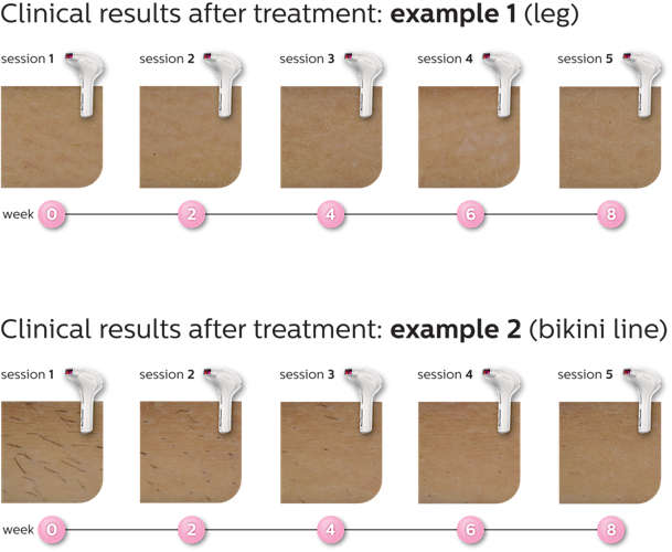 Philips Lumea Clinical Trials results
